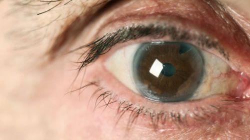 1429362481_glaucoma